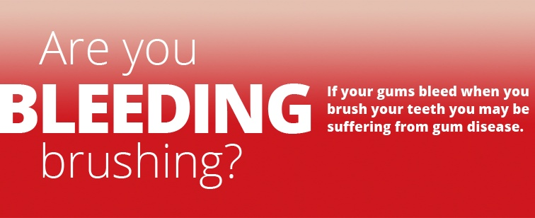 Are you Bleeding brushing?