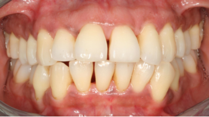 Patient after perio treatment - now with healthy gums and teeth